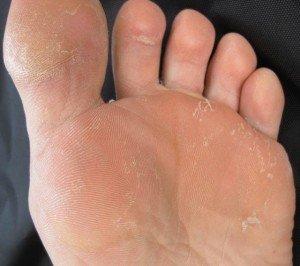 psychomorphologie des pieds